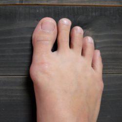 nagy lábujj ízület kezelési áttekintése
