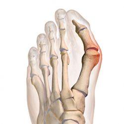 1. fokozatú artróziskezelési áttekintések csípőbursitis tünetei és kezelése