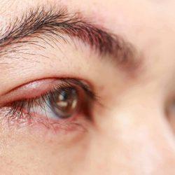 A szemhéjszél gyulladás, blepharitis